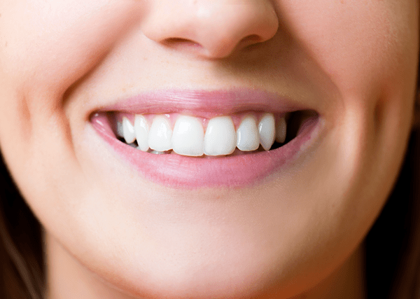 Reasons to Get Professional Teeth Whitening