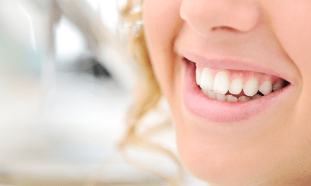 The Experienced Dentists In Aspen Dental For Your Dental Care