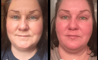 Lynn's facial redness gone in 3 days on the Wheat Belly Detox!