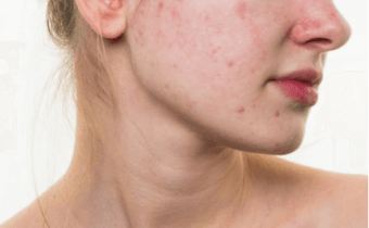 Don't Let Grains Ruin Your Skin