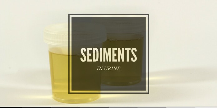 white stuff in urine