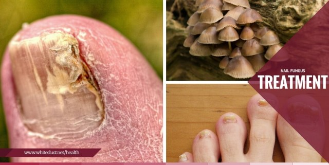How To Get Rid of Toenail Fungus?