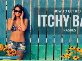 How to get rid of rashes on back