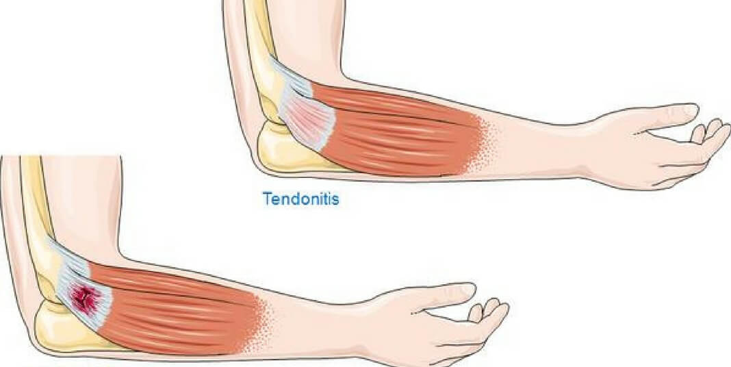 what is tendonitis? how to fix it | whitedust, Sphenoid