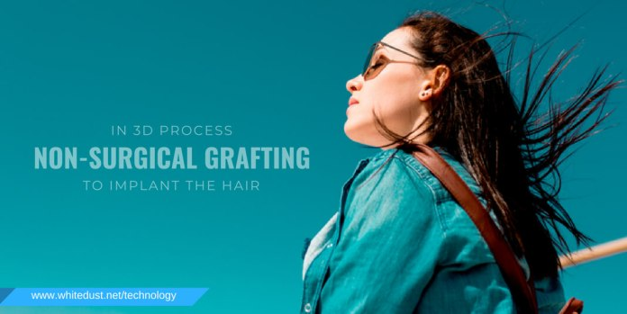 3D process requires no kind of surgical treatment to implant the hair onto the scalp