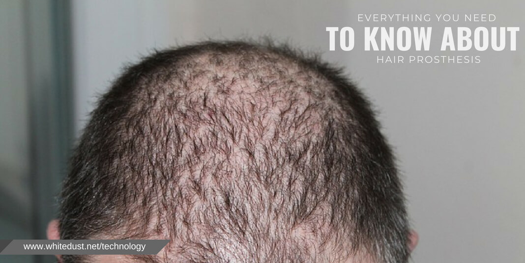 Everything To Know On Hair Prosthesis 2018 New Whitedust