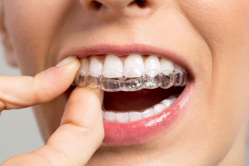 White Smile Dental: Orthodontics: We offer braces