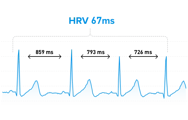 RR intervals show heart rate variability.