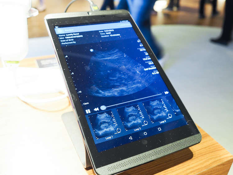 lumify ultrasound for ipad