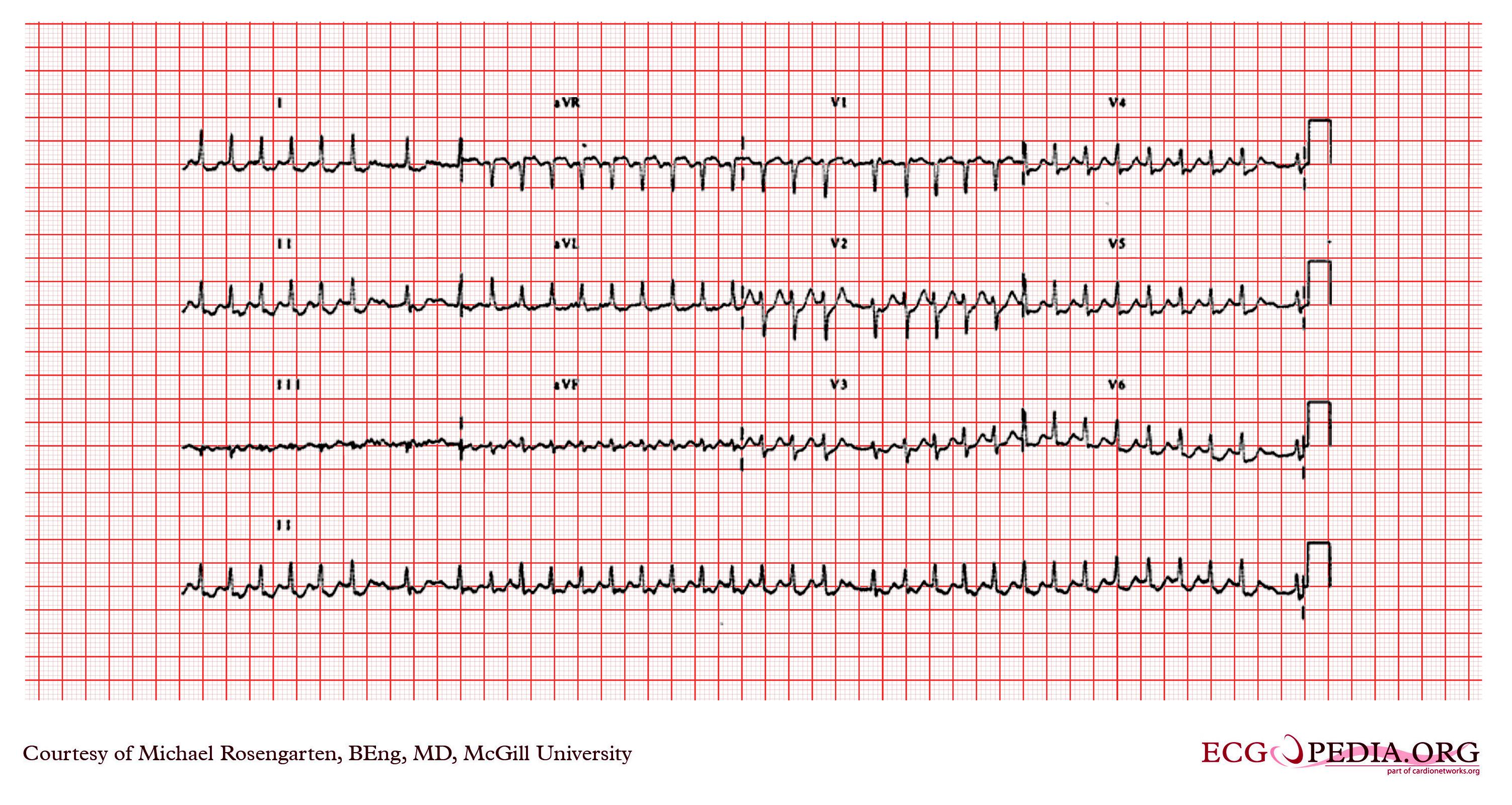 Supraventricular Tachycardia Ekg Examples