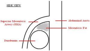 Superior mesenteric artery syndrome  wikidoc
