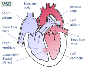 Ventricular septal defect pathophysiology  wikidoc