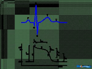Electrocardiogram  wikidoc