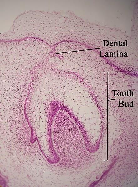 Dental lamina and tooth bud