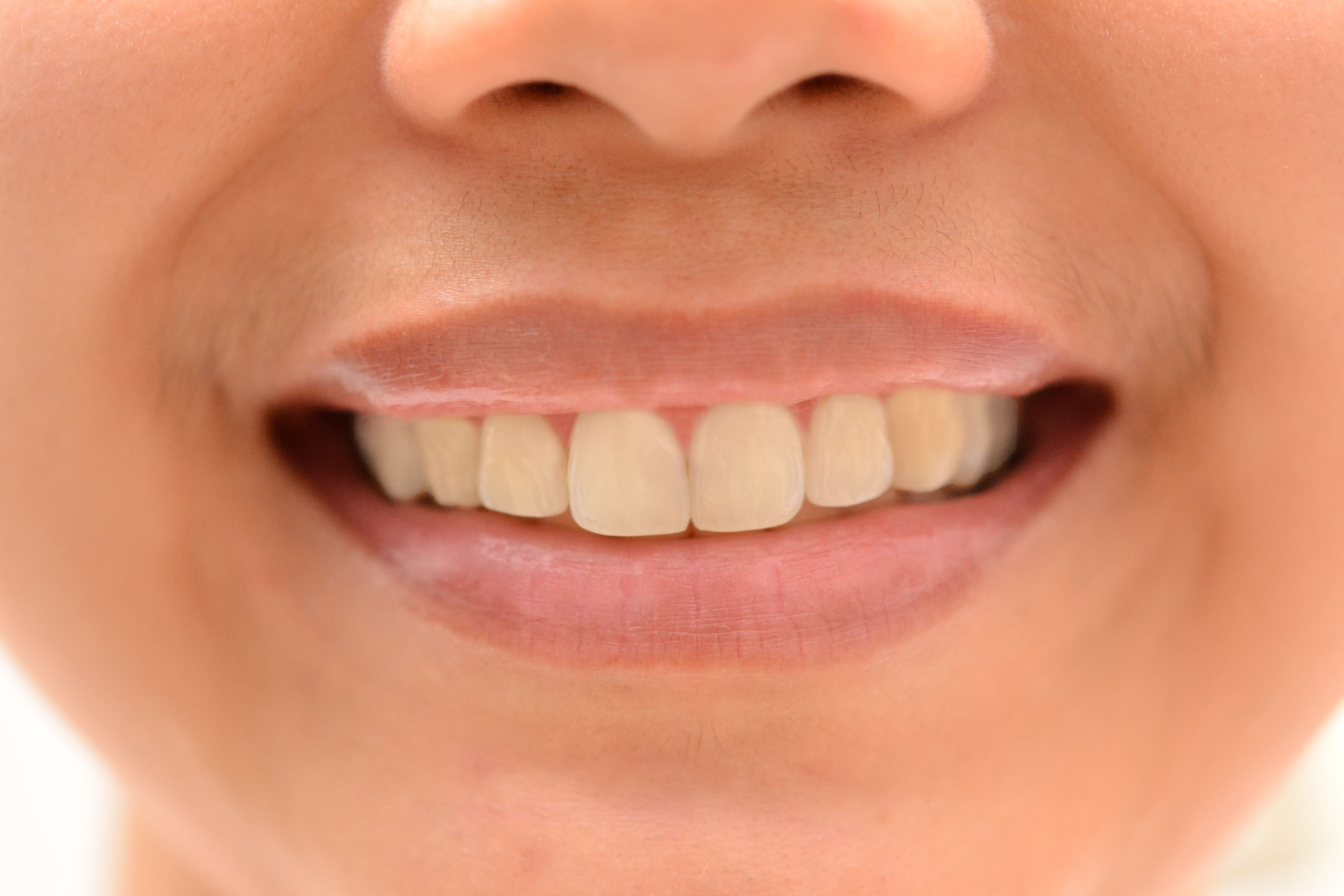 The Shape Of Your Teeth Can Reveal A Lot About Your