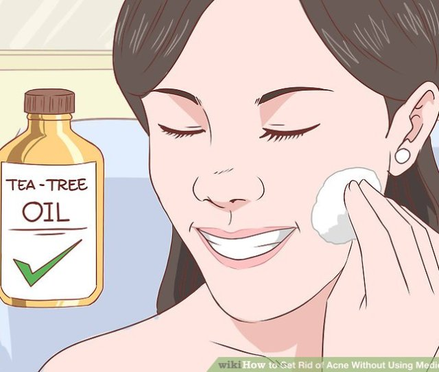 Image Titled Get Rid Of Acne Without Using Medication Step