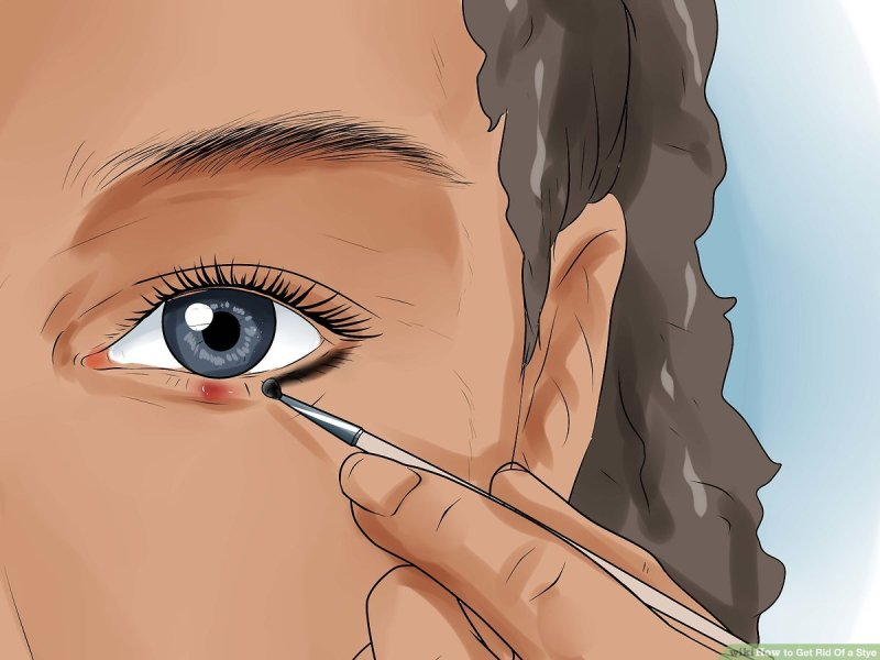 How To Get Rid Of A Stye 11 Steps