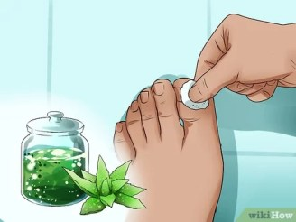 3 Ways to Use Herbs for Sprains and Bruises - wikiHow