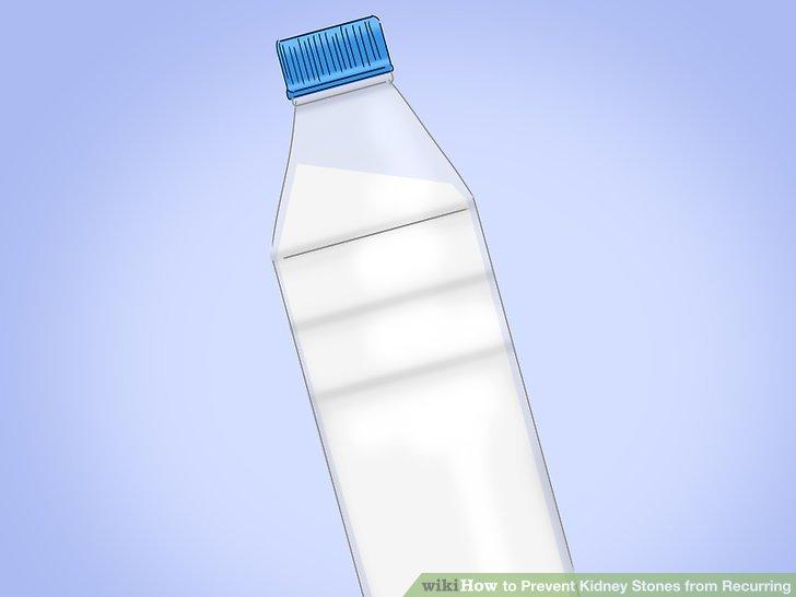 Drinks Cause Kidney Stones