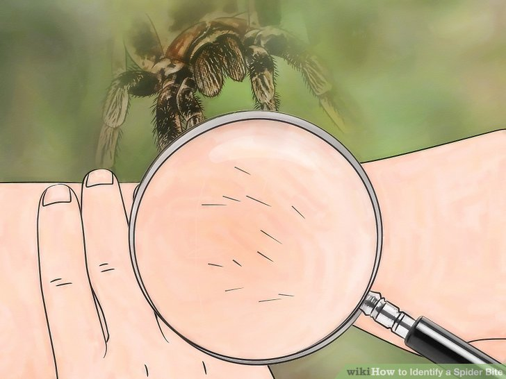 Spider Bite Black Spot Skin