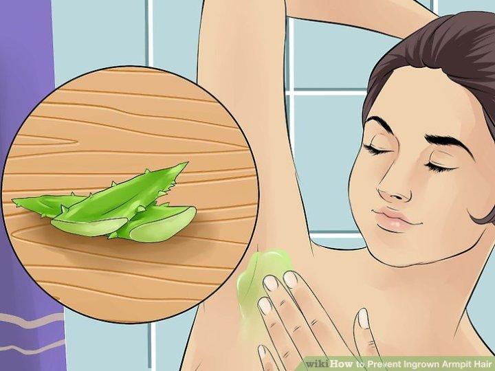 Image Titled Prevent Ingrown Armpit Hair Step 12