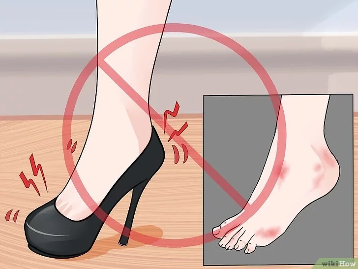 Immagine titolata Prevent Foot Blisters Step 2