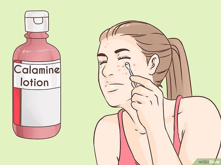 صورة عنوانها Get Rid of a Popped Pimple Overnight Step 8