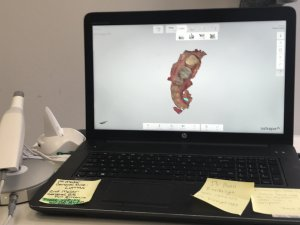Picture of laptop displaying image of teeth on bottom jaw.