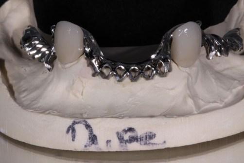 6.Partial Framework and PFM Crowns