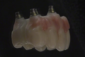 9. Zirconia Milled Implant Bridge