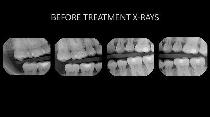 2. Before Radiographs;Full Mouth Rehabilitation