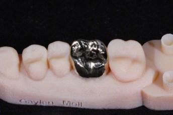 3. Gold Crown on  3D Printed Models