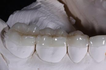 3.Lab Processed Composite Orthotic