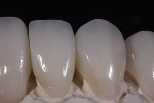 metal-free-crowns-implant-crown-12.jpg