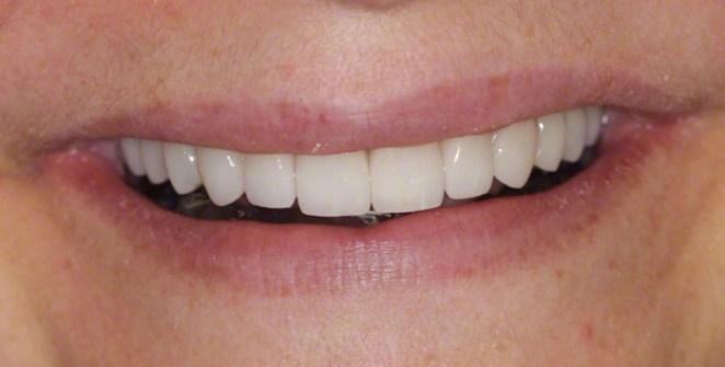 6. After Smile; Smile Makeover