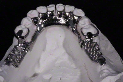 1.Metal Partial Denture Framework