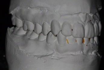 2.Right Lateral View;Habitual Bite