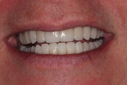 3. After Smile View; Neuromuscular Reconstruction