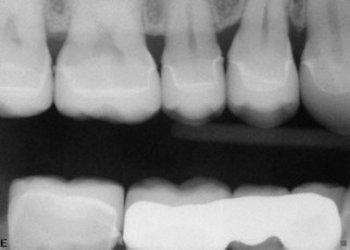 5. Post Treatment Radiograph