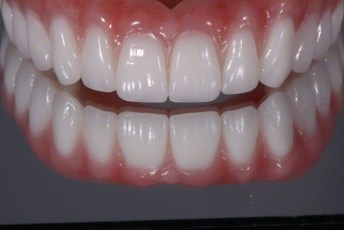 3.Complete Dentures with Naturalized Base