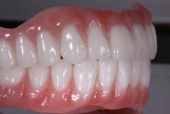 4.Complete Dentures with Naturalized Base