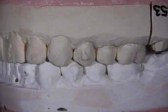 4.Model equilibration adjustment free crown & bridge