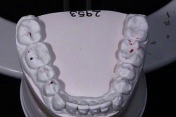 6.Model equilibration adjustment free crown & bridge