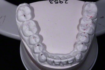 13.Model equilibration adjustment free crown & bridge