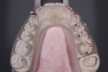 18.Model equilibration adjustment free crown & bridge