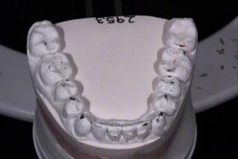 21.Model equilibration adjustment free crown & bridge