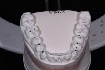26.Model equilibration adjustment free crown & bridge