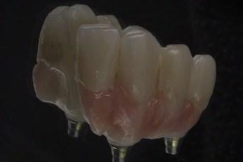 8.Screw Retained Zirconia Implant Bridge