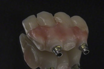 9. Screw Retained Zirconia Implant Bridge
