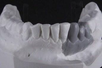 2.Waxed;Screw Retained Zirconia Implant Bridge